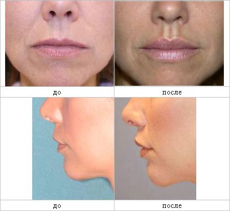 Что такое операции над верхней губой