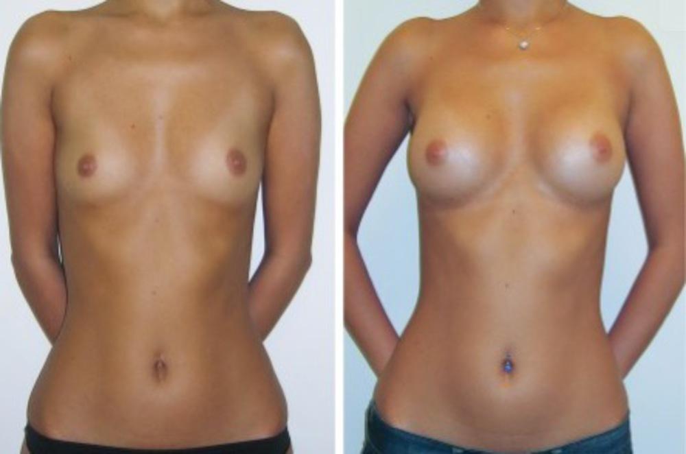 увеличение груди период реабилитации