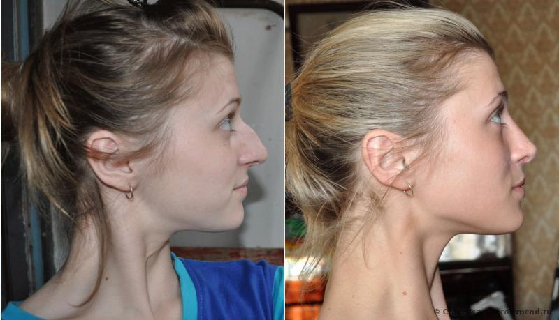 Ринопластика как подобрать форму носа